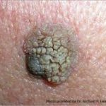 Skin Cancer Natural Remedies You Can Enjoy