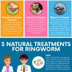 Natural Ringworm Remedies to Keep in Your Home