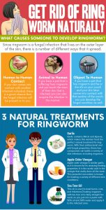 natural ringworm remedies